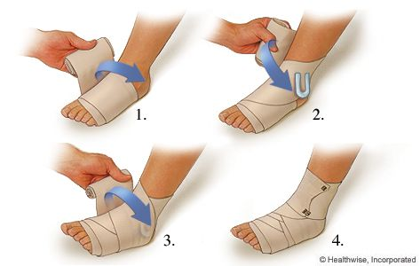 A compression wrap helps control inflammation and further injury on a sprained ankle, but do you know how to properly wrap a foot? Check out these simple tips: