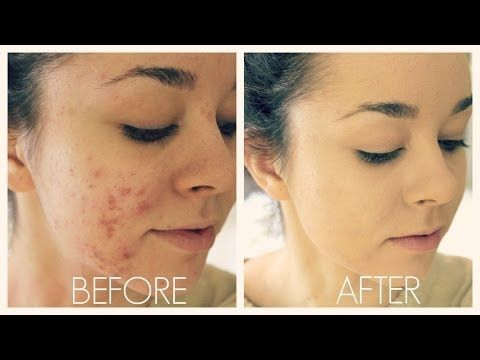 How To Cover Acne & Scars (IF You Want To)   Easy Makeup Transformation Routine - YouTube