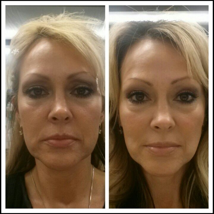 Before & after using NeriumAD Night and Day Treatment.  For more info or to place your order go to www.elviashepherd.nerium.com
