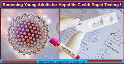 Screening Young Adults for Hepatitis C with Rapid Testing!   Hepatitis C (HCV) is a viral infection that affects the liver and an estimated 3.2 million people in the USA are infected with HCV and most do not feel ill or know that they are infected. Since 2010 acute cases of HCV have more than doubled with new cases predominantly among young white individuals with a history of injection drug use.  The current recommendations are that doctors screen patients at high-risk for contracting HCV…