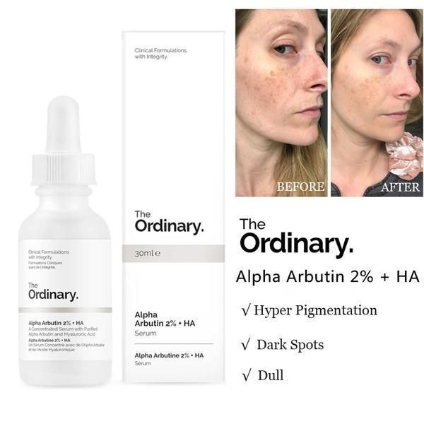 Is The Ordinary Hyaluronic Acid Serum Good For Oily Skin