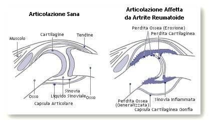 Confronto tra un'articolazione sana e una con artrite reumatoide