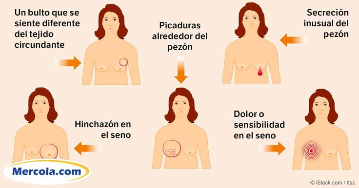 La optimización de sus niveles de vitamina D podría ayudarle a prevenir más de 16 diferentes tipos de cáncer, incluyendo cáncer de mama y cáncer de piel. http://espanol.mercola.com/boletin-de-salud/vitamina-d-podria-prevenir-el-cancer-de-mama.aspx