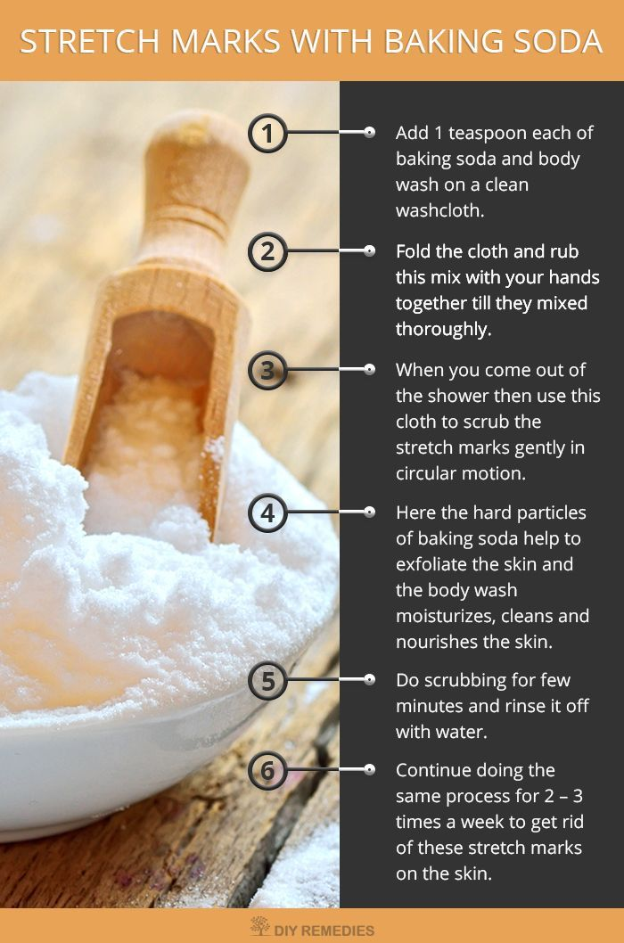How to use Baking Soda for Stretch Marks