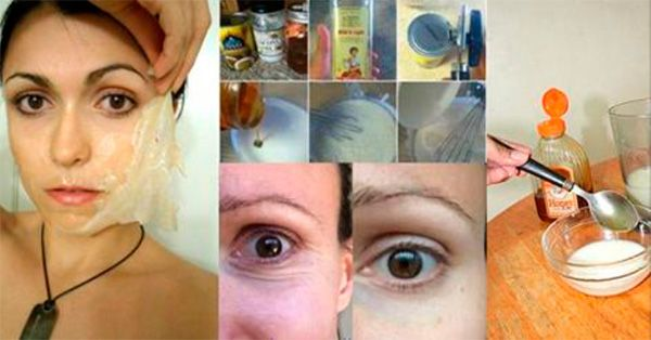 Las arrugas o líneas faciales son el primer indicador del envejecimiento y pérdida de la vitalidad de la piel, lo que puede ser un asunto de importancia especialmente en las mujeres, aunque para los hombres también. Anuncio ¿Cómo podemos influenciar sobre las arrugas? Definitivamente el estilo e vida que llevamos Los alimentos que consumimos Y …