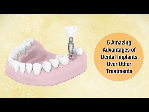 5 Amazing Advantages of Dental Implants Over Other Treatments