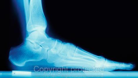 When should I get a bone density test? - Diagnostic Imaging - Sharecare