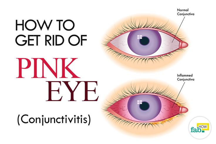 How to Get Rid of Pink Eye (Conjunctivitis) without Antibiotics | Fab How