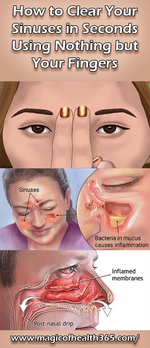 HOW TO CLEAR YOUR SINUSES IN SECONDS USING NOTHING BUT YOUR FINGERS
