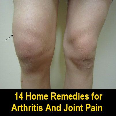 Natural Remedies For Arthritic Knee Pain