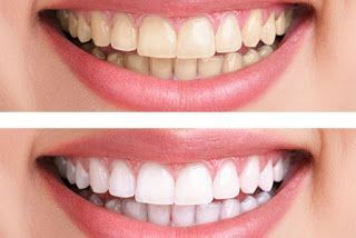 How to teeth whitening at home: Zoom Teeth Whiteni…
