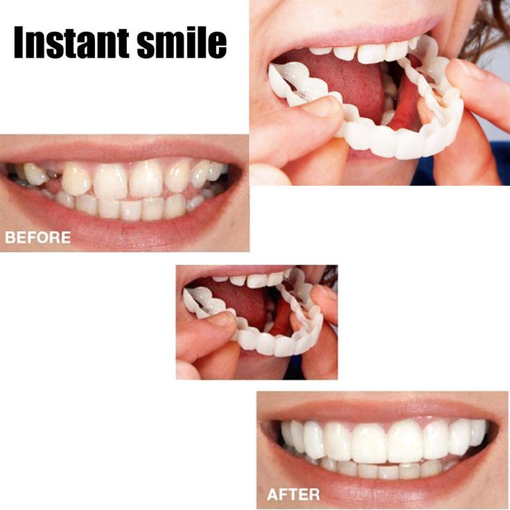 Instant perfect smile upper lower clipsnap on veneers