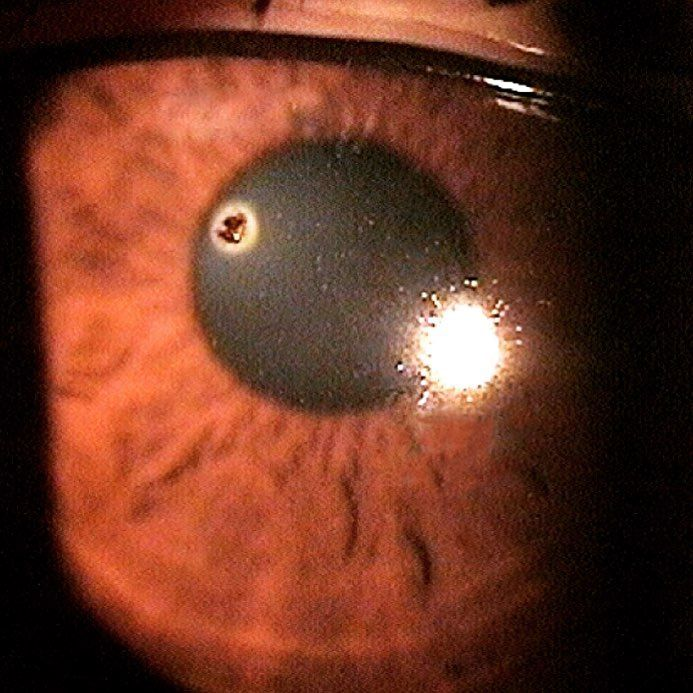 71149f9ac9c3eb5023ffdace72e54ea1 - How To Get A Piece Of Metal Out Your Eye