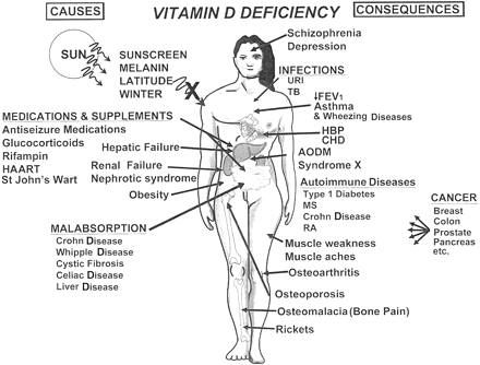 vit D deficiency is common in fibromites!!.