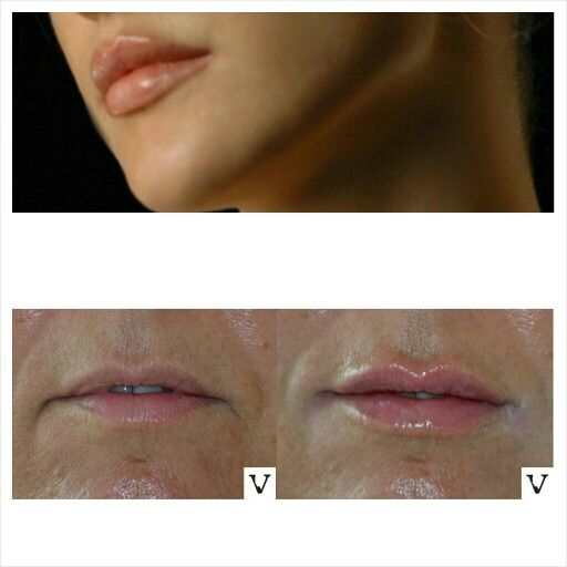My patients often ask me if I do my lips, no I don't. Next question 'can I have lips like yours?'  'yes you can!' #lip #augmentation #boston #facelift #face #radiesse #juvederm #botox #sculptra #rhinoplasty #nosejob #alternative #injection #expert #newton #asymmetry #correction #reconstruction #hiv #lips #eyes #beauty #taste #youth #young #proportion #selfesteem #juvederm #belotero #merz #galderma #allergan #botox