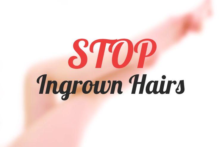 Best Ingrown Hair Products: Put a Stop to Ingrown Hairs