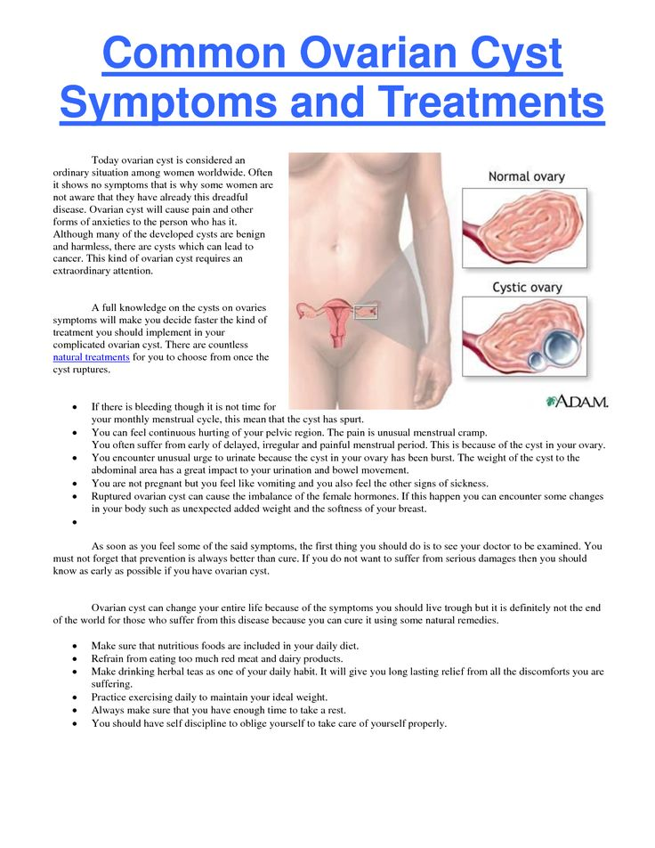 Signs and Symptoms | Common Ovarian Cyst Symptoms and Treatments