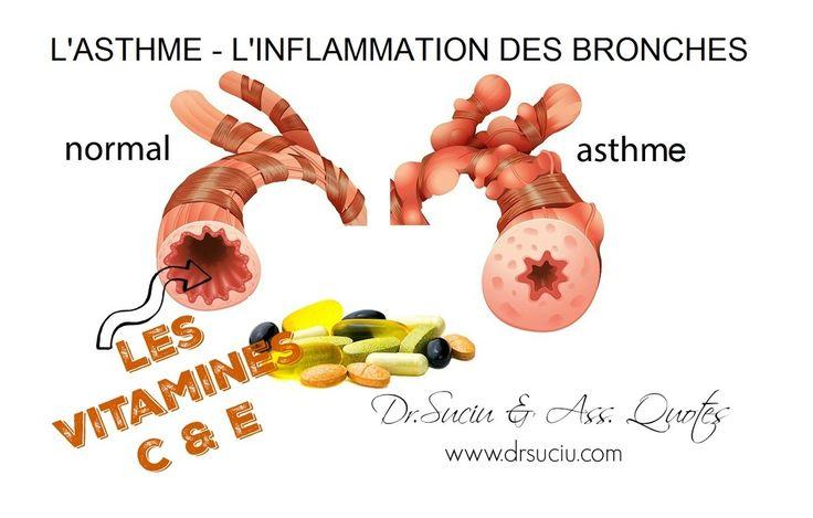 Les vitamines C et E dans l'asthme