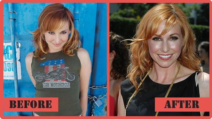 Carrie mythbusters plastic surgery