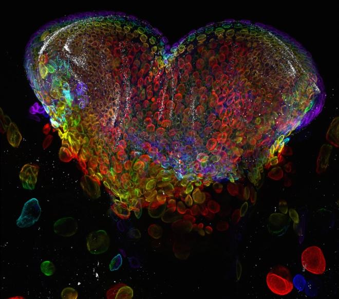 Eye organ of a fruit fly larva    Dr. Michael John Bridge  HSC Core Research Facilities - Cell Imaging Lab  University of Utah  Salt Lake City, Utah, USA    Confocal, 60x