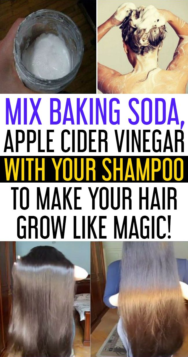 Baking Soda Shampoo To Make Your Hair Grow Like Magic Baking Soda Shampoo Vinegar For Hair Apple Cider Vinegar Shampoo