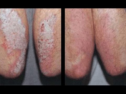 How To Treat Psoriasis