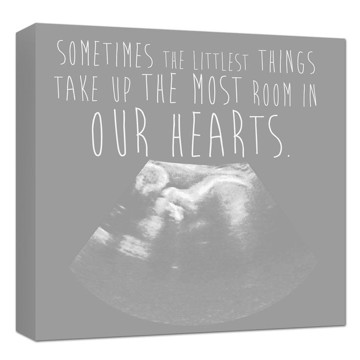 385 best mothers day gift ideas images on pinterest baby gifts ultrasound artwork sonogram canvas nursery art personalized holiday gift for dad negle Images