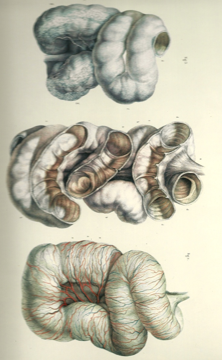 intestine from anatomy and surgery lithograph. beautiful shapes and textures.