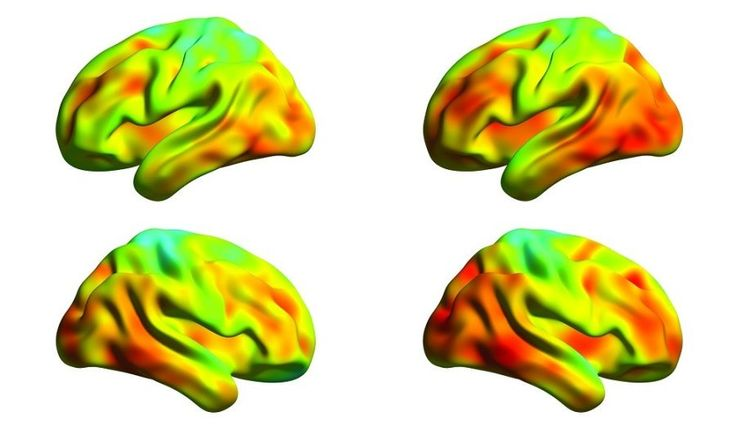 Spread of tau protein measured in brains of Alzheimer's patients