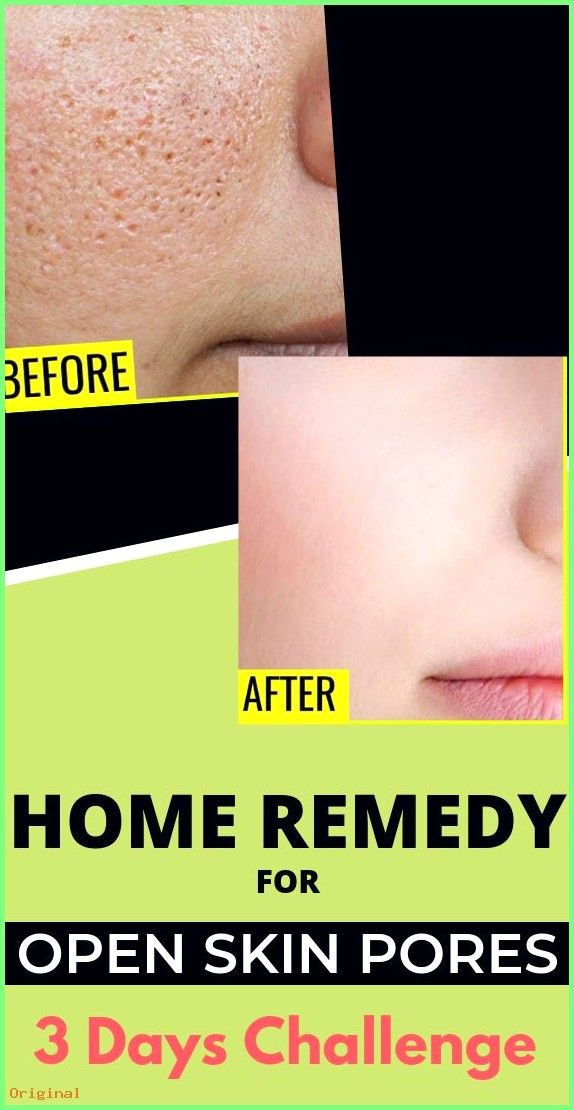 50 Skin Care 3 Easy Home Remedies To Shrink Size Of Open Skin Pores Skin Skincare Homer Skin Pores Skin Care Skin