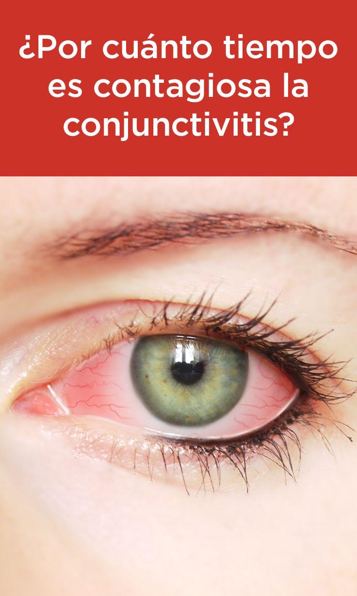 ¿Por cuánto tiempo es  contagiosa la conjuntivitis? Averigüe cuánto tiempo los síntomas de la conjuntivitis suelen durar y opciones de tratamiento.