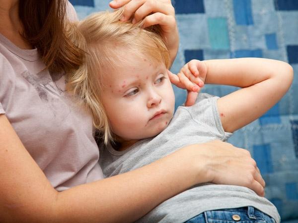 Chicken Pox and High Blood Pressure