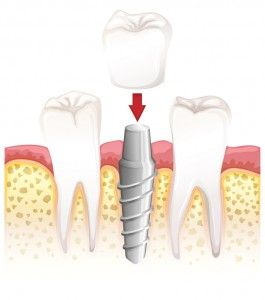 Stable and natural tooth replacement with dental implants #Denver #dentist