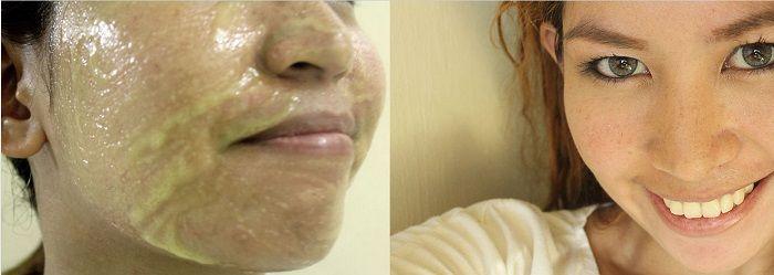 Cilt parlatıcı limon ve bal maskesi