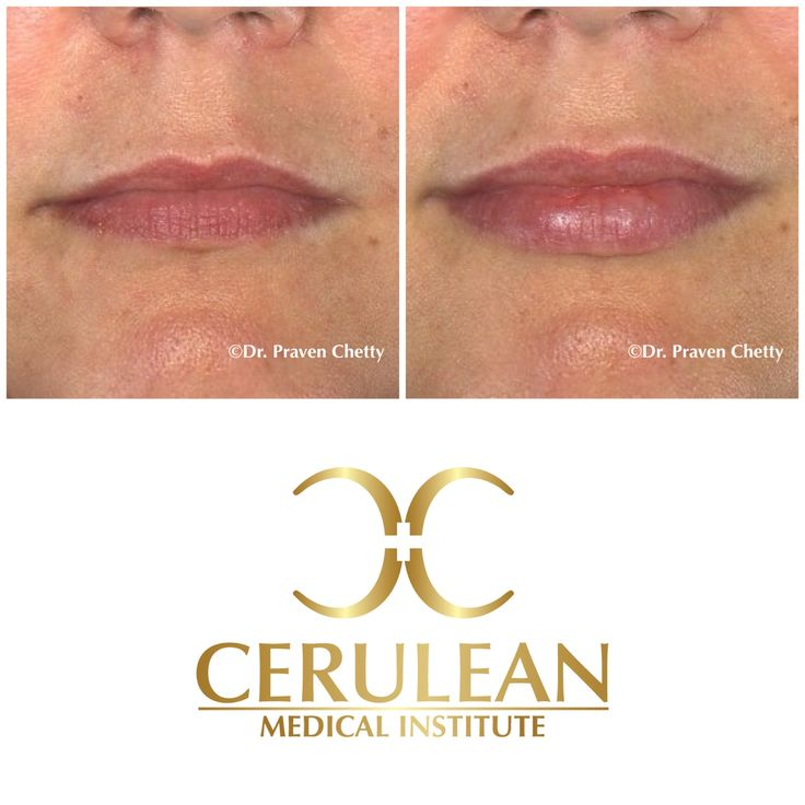Lip Enhancement by Dr. Praven Chetty at Cerulean Medical Institute in Kelowna, BC. Turning back the clock with Volbella  #LipEnhancement #LipAugmentation #LipInjections #Lips #Fillers #DermaFillers #Juvederm #Volbella #Cosmetic #Dermatology #CeruleanMedicalInstitute #DrPravenChetty #Kelowna #Okanagan