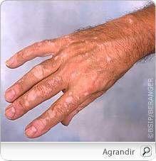Le vitiligo est une affection de la peau caractérisée par l'apparition de taches blanches sur les pieds, les mains, le visage, les lèvres ou toute autre partie du corps. Ces taches sont causées par une « dépigmentation », c'est-à-dire la disparition des mélanocytes, les cellules responsables de la couleur de la peau (pigmentation).