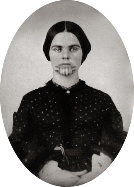 The story of Olive Oatman. Her family was murdered with the exception of a brother that was left for dead at the wagon and a sister who was kidnapped along with Olive by the Indians. Olive was sold to another tribe and it is they who tattooed her chin and arms. Her sister died at ten years old, but Olive was rescued when word of a white girl reached an army outpost. Her freedom bought with blankets and other trade items.
