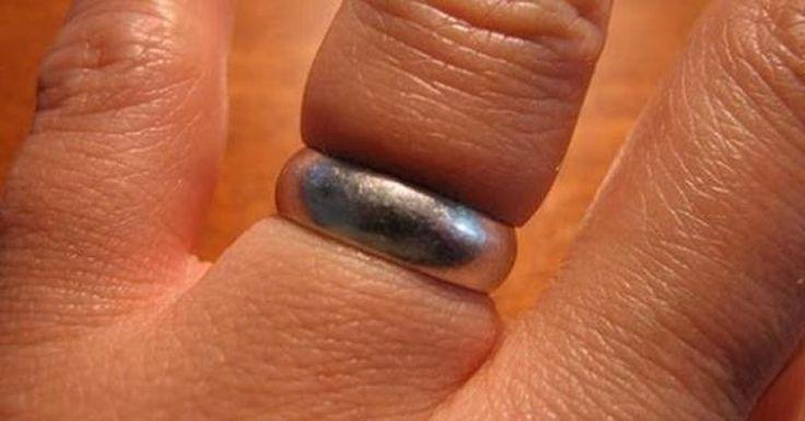 Si un doigt bagué gonfle en cas d'accident, on en arrive souvent à couper la bague pour pouvoir la retirer en toute sécurité.