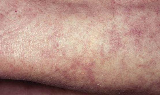 Reticulated Rash On Legs – Wonderful Image Gallery