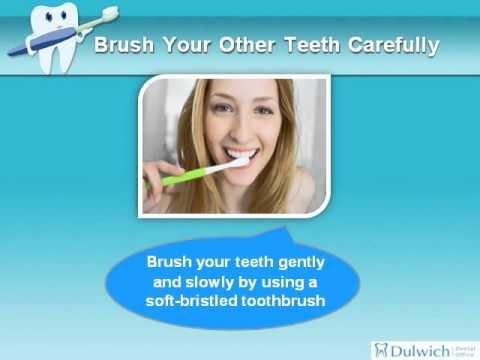 How to Clean Your Teeth After Wisdom Teeth Removal