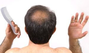 A High-Quality Male Pattern Baldness Cure?