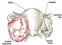 learn the basic pathology of ovarian tumor of surface epithelium origin http://www.medicalzone.net/pathology-definition---ovarian-tumor--surface-epithelium-origin.html