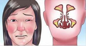 Ako uvoľniť upchatý nos behom pár sekúnd? Je to jednoduchšie, než by ste čakali!   Báječné Ženy