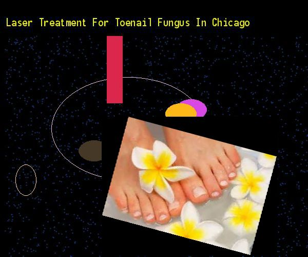 Laser treatment for toenail fungus in chicago - Nail Fungus Remedy. You have nothing to lose! Visit Site Now