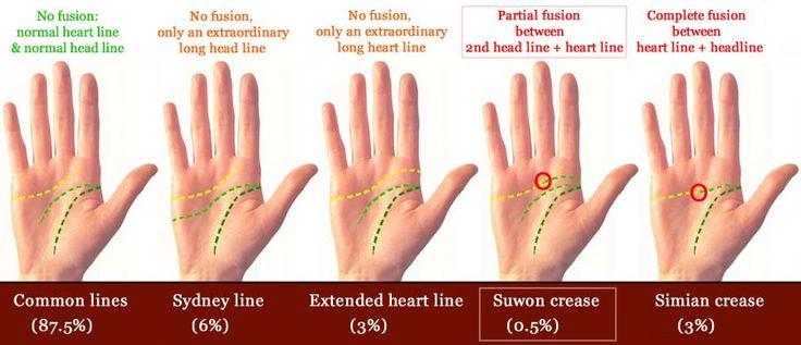 The Suwon crease defined vs.simian line & Sydney line.