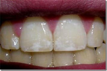 Dental Fluorosis – Look What I Did to Our Son