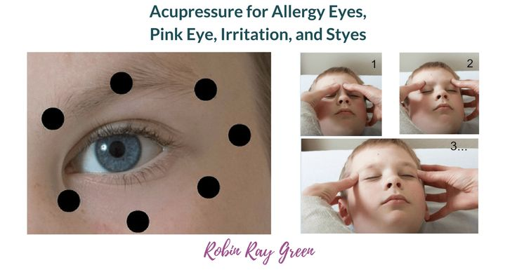 Acupressure for Allergy Eyes, Pink Eye, and Styes