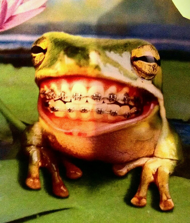 FUNNY BRACES FROG - My friend Ashley got me this card, it definitely made me smile :)