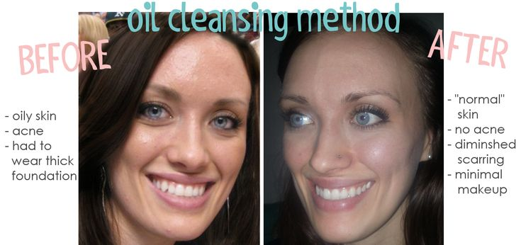 oil cleansing method... natural skin care for the best skin of your life!