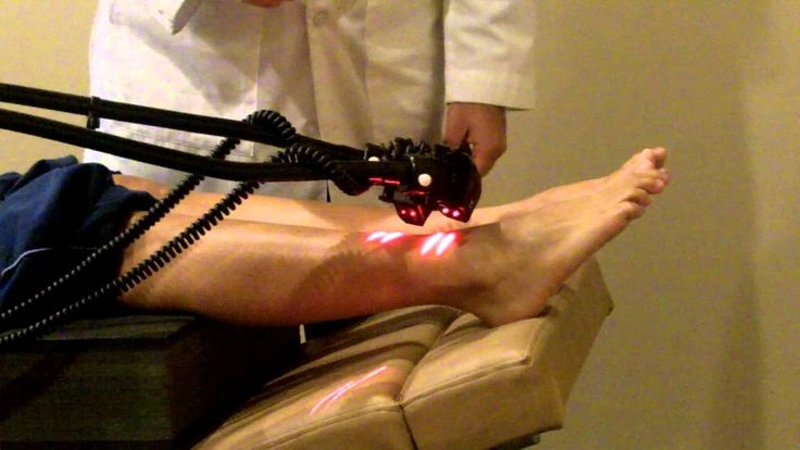 Cold Laser Therapy Treatment for Neuropathy caused by Diabetes - WATCH VIDEO HERE -> http://bestdiabetes.solutions/cold-laser-therapy-treatment-for-neuropathy-caused-by-diabetes/      Why diabetes has NOTHING to do with blood sugar    Dr. Adam Zuckerman o